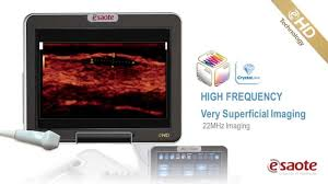 linear imaging ehd technology youtube