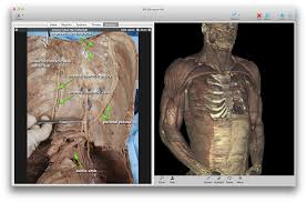 Interactive 3d Anatomy Toltech Vh Dissector For Medical Education