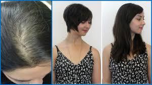 how to stop hair loss and regrowth hair faster at home hair fall