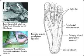 Foot Surface Anatomy Sole Foot Wikipedia