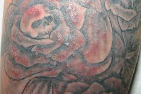 tattoo bacterial infection treatment tattooinfectedww jpg