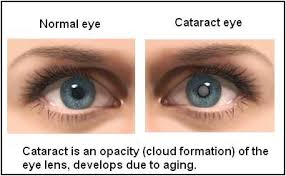 Diabetes Causing Blindness April Seven Cataracts Types Symptoms And All You Need To Know