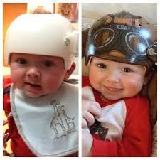 doc band wraps plagiocephaly and decorative cranial helmets growing places therapy