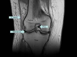 Anatomy Of Knee Injuries Magnetic Resonance Imaging Knee Injury And Prevention