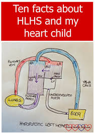 facts about hlhs and my child hearts big