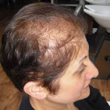 rogaine for women success stories intralace hairlosstalk forums