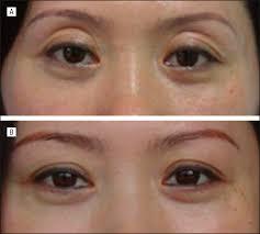 repair of unsatisfactory double eyelid after double eyelid