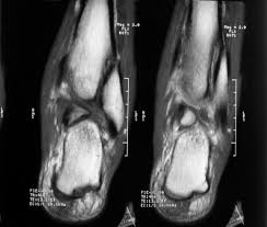 Talar Coalition Open Ankle Dislocation Without Associated Malleolar Fracture The