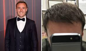 coronation street hair transplants coronation street cast tyrone dobbs actor alan halsall shares