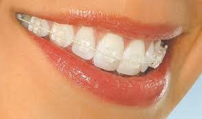 nickel free braces braces ez dental specialty