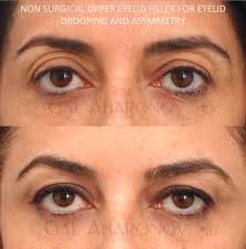 upper eyelid fillers restylane treatment to treat hollowness and