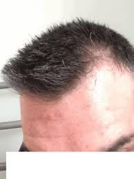 thining hair large ears men thinning on left side of head only baldtruthtalk com