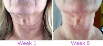 Challenge Neck My Neck Firming Results No Expensive Procedures