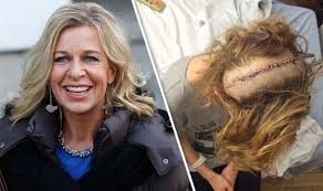 can you color hair after brain surgery katie hopkins reveals large scar after risky brain operation i