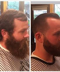 receding hair slicked back 45 hairstyles for men with receding hairlines menhairstylist com