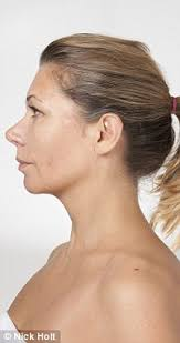 hairstyles to disguise saggy necks one stitch facelift quick fix plastic surgery for turkey neck