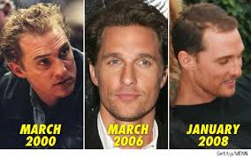 rob brydon hair mathew m hair transplants stop hair loss now