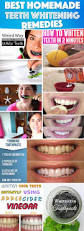 whitening teeth whitening diy awesome home teeth bleaching 18