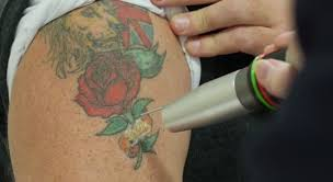 14 key factors that affect laser tattoo removal andrea catton