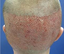 fut hong kong hair transplant rejoice medical science pvt ltd mumbai service provider of