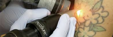 tattoo removal frequently asked questions laser tattoo removal frequently asked questions