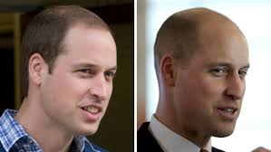 35 year old hair cut no hair on the heir prince william sports dramatic new buzz cut