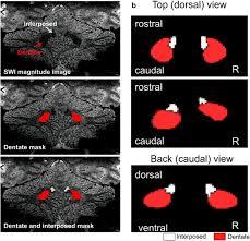 cerebellar cortex and cerebellar nuclei are concomitantly