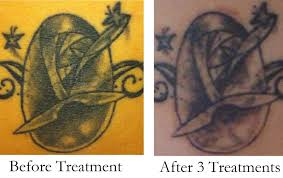 my laser tattoo removal