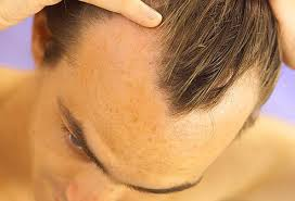 thining hair large ears men your hair and scalp can say a lot about your health