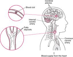 Can Stroke Cause Blindness Ischemic Stroke Brain Spinal Cord And Nerve Disorders Merck