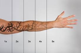 tattoo removal does it work laser tattoo removal allure laser center
