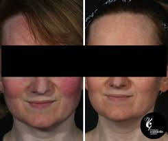light treatment for skin all about led phototherapy in australia
