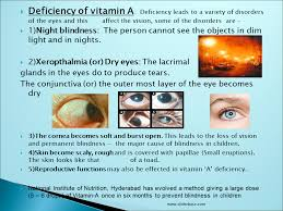 Night Blindness Caused By Vitamin A Deficiency Vitamins Presentation Health And Disease Sliderbase