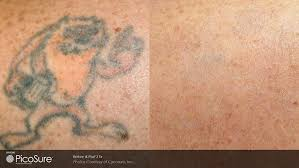 laser tatto removal with picosure and revlite laser tatoo removal
