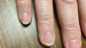 8 weird things your fingernails say about your health rodale u0027s