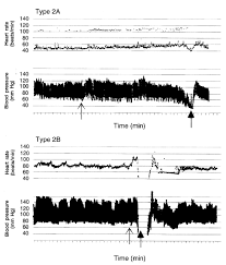 cardiac pacing for prevention of recurrent vasovagal syncope