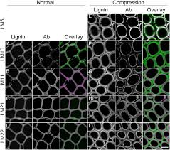 localization of cell wall polysaccharides in normal and