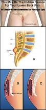 pilonidal cyst 90 best spine 척추 images on pinterest health chronic pain and
