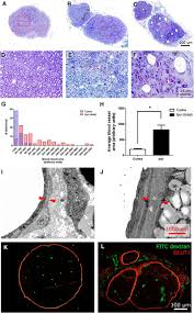 peripheral nerve injury induces persistent vascular dysfunction