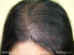 women thin hair on top use of dermmatch for managing thinning hair in women with photos