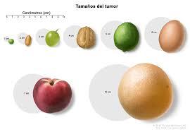 bultos maduros videos maduros meando 4 tumores extracraneales de células germinativas en la niñez pdq