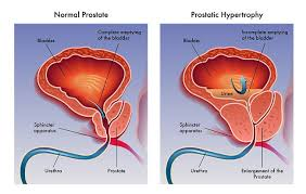 12 natural ways to treat an enlarged prostate