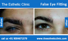 Artificial Eye For Blind False Eye Fitting Artificial Eye Fitting Surgery Mumbai The