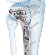 femur intramedullary nail trochanteric proximal tfn depuy