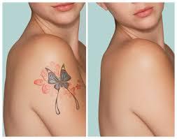 ladies body tattoo removal in delhi u2013 cosmotree clinic in delhi