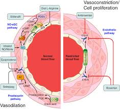 vasculopathy and pulmonary hypertension in sickle cell disease