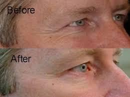 deep penetrating light therapy device dpl deep penetrating light therapy skin care reviews discounts