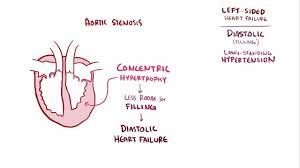 heart failure hf cardiovascular disorders merck manuals