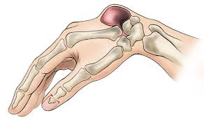 ganglion cyst of the wrist and orthoinfo aaos