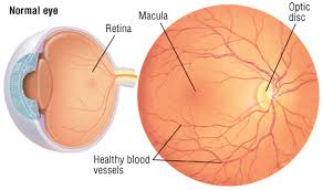 Diabetes Causing Blindness Retinopathy Guide Causes Symptoms And Treatment Options